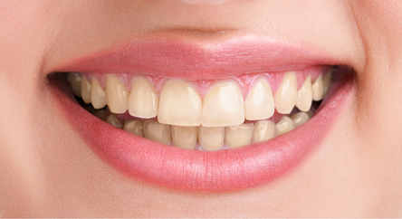 Tooth- Whitening